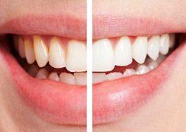 Профессиональная гигиена  и отбеливание зубов