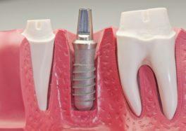 Стоматологическая имплантация
